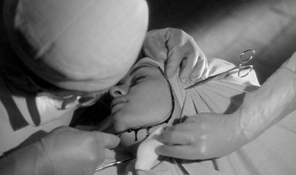 Les yeux sans visage | Georges Franju